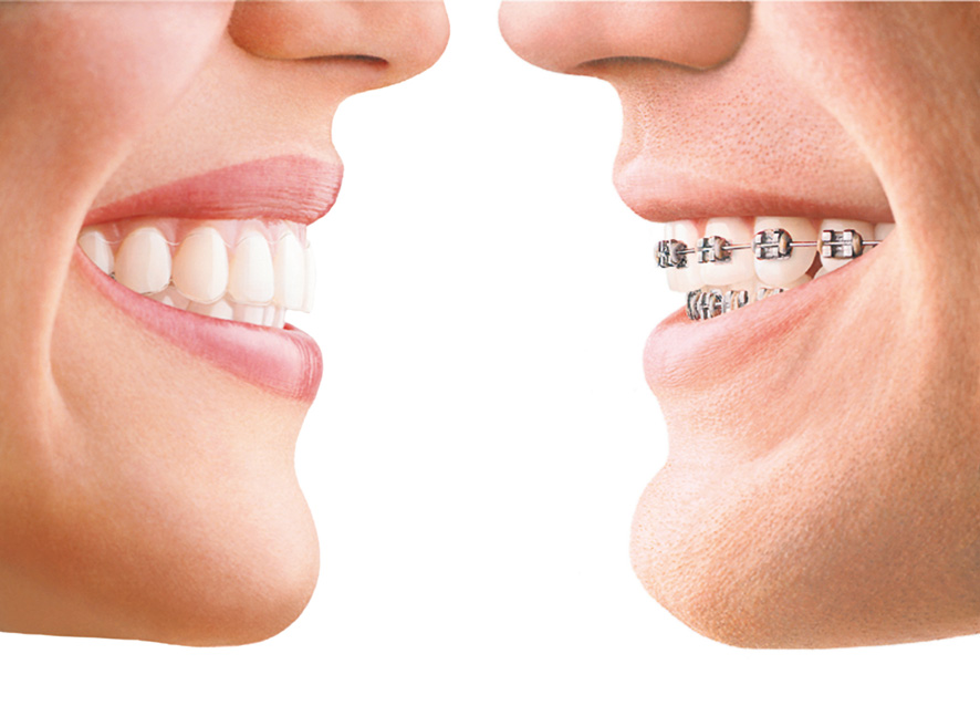 invisalign fleming island fl